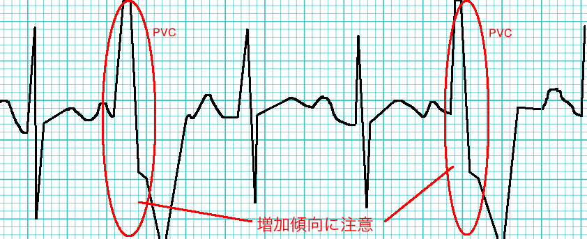 期 心室 外 収縮 性