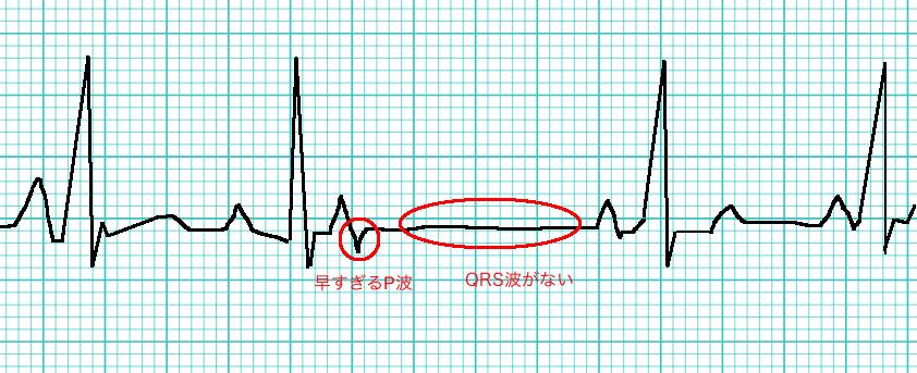 多発 性 心室 性 期 外 収縮